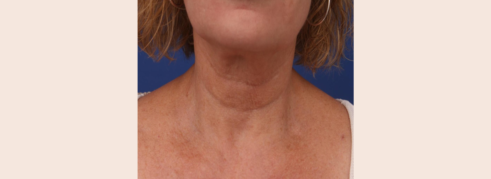 skin firming treatments result on a women neck